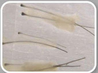 Estrazione del follicolo per trapianto di capelli - Video