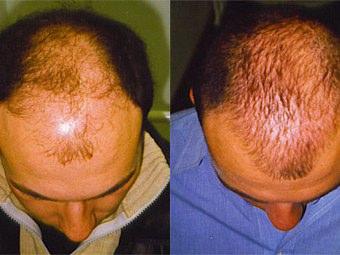 Foto del risultato di un trapianto di capelli