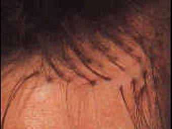 Trapianto capelli: impianto degli innesti