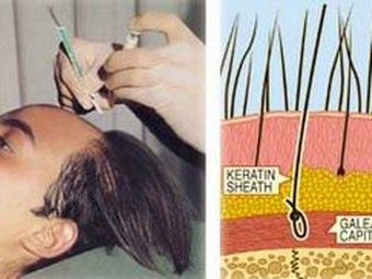 Trapianto di capelli: Anestesia