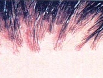 Trapianto di capelli: i microinnesti