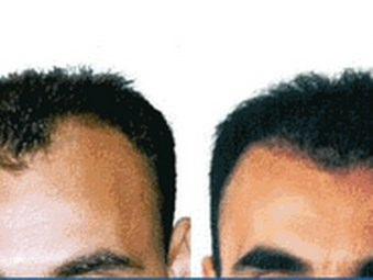 Trapianto di capelli: risultato - Video